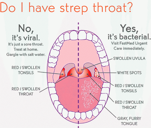 strep sthroat symptoms