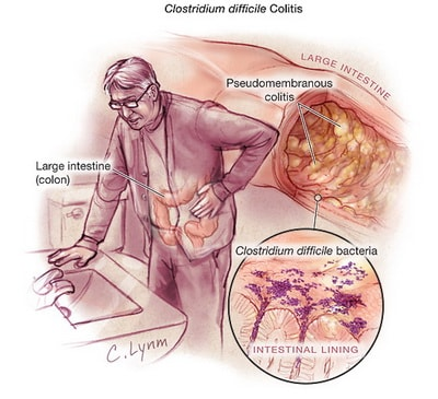 clostridium difficile symtom